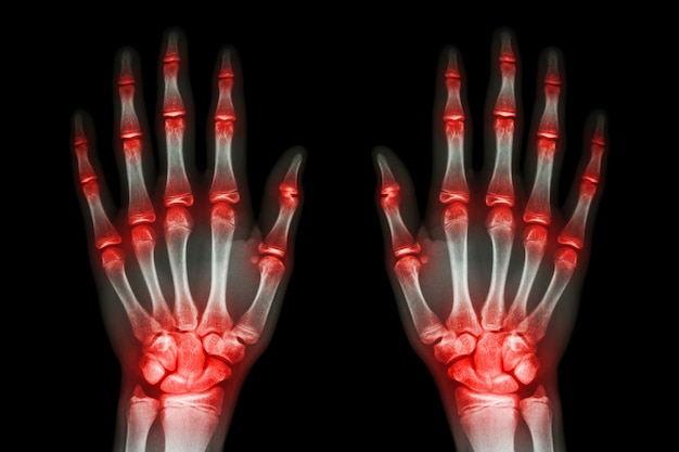 Wiele stawów stawów obie ręce (dna, reumatoidalne) na czarnym tle