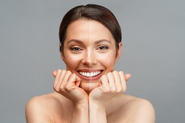 Wybielanie skóry kobiety z ameryki łacińskiej porównującej połowę jej twarzy z ciemną opaloną skórą, a połowę z
