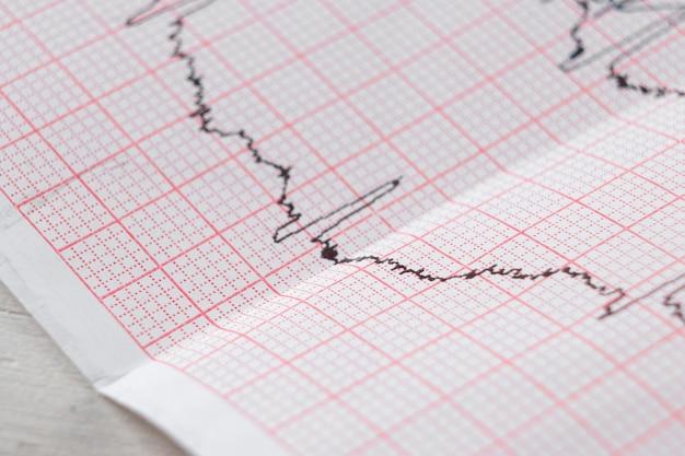 Wykres ekg serca elektrokardiogram na specjalnym papierze. koncepcja skanowania serca, ubezpieczenia zdrowotnego, wykształcenia medycznego, badania.