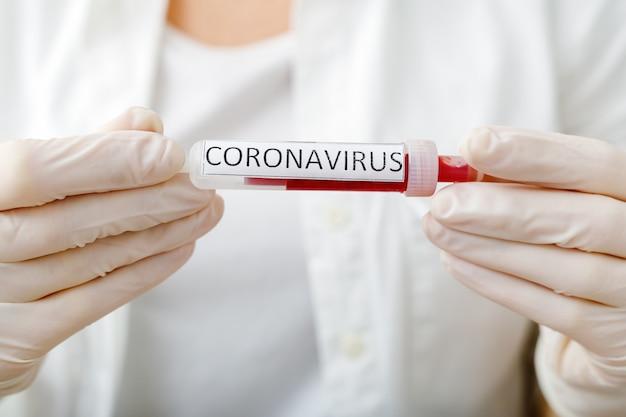 Wynik testu koronawirusa, krew zainfekowana koronawirusem w próżniowej probówce w rękach lekarzy z tekstem koronawirus w laboratorium. diagnoza, wykrywanie, analiza chińskiego koronawirusa. epidemia