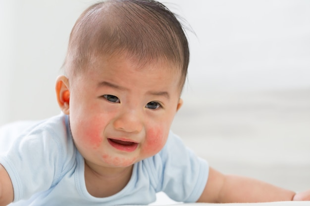 Wysypki skórne w koncepcji niemowląt