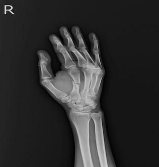 X-ray hand ap, oblique: złamanie środkowego wału rt.2nd. pękanie tkanki miękkiej w kościach metakapalnych.