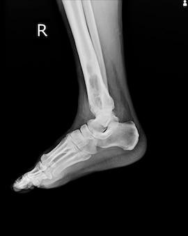 X-ray rt.ankle znajdujący wewnątrzszpikowe uszkodzenie osteolityczne prawej dalszej kości piszczelowej