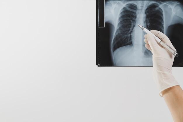 X ray skanowania z piórem