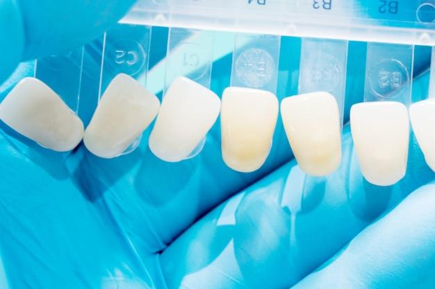 Z bliska przewodnik po odcieniach, aby sprawdzić kolor korony zęba w klinice.