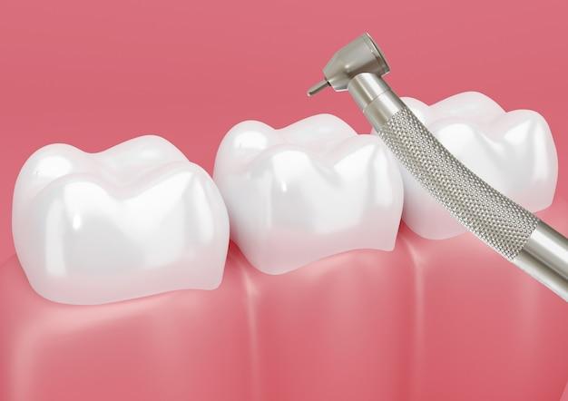Ząb pacjenta leczony wiertłem dentystycznym w celu usunięcia ubytków.