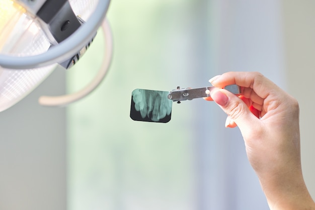 Zakończenie stomatologiczny promieniowanie rentgenowskie strzał zęby w rękach dentysta lekarka