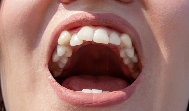 Zakrzywione zęby żeńskie przed założeniem aparatu. zbliżenie zębów przed leczeniem przez ortodontę