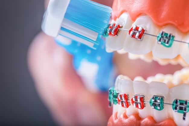 Zamknięte aparaty ortodontyczne i szczoteczka do zębów jako przykład szczotkowania zębów.