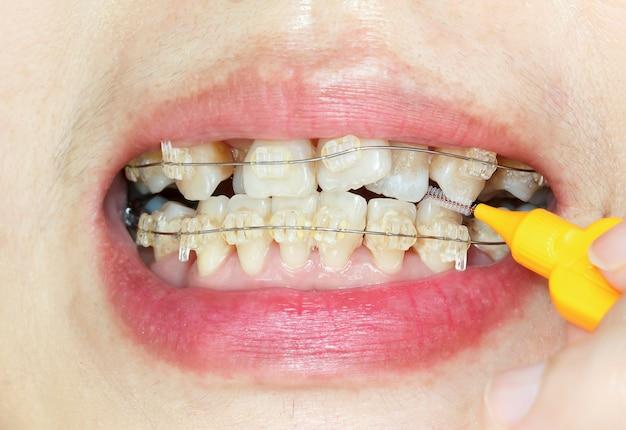 Zamknij krzywe zęby aparatem ortodontycznym, czyszczeniem międzyzębowym