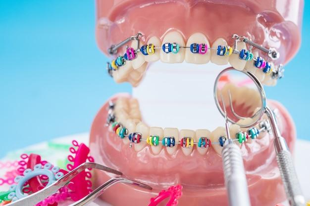 Zamknij narzędzia dentystyczne i model ortodontyczny