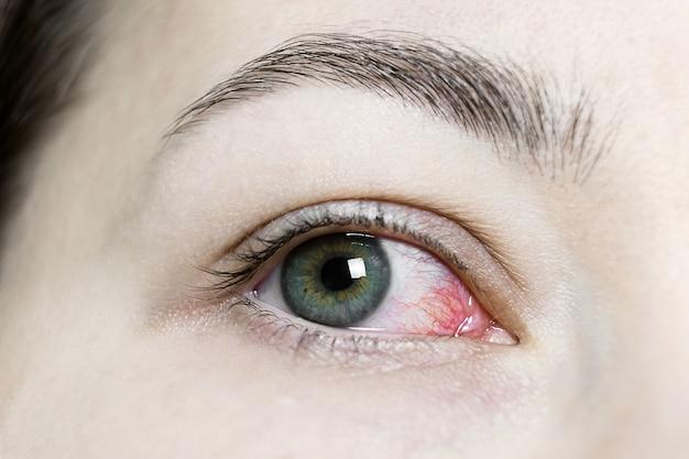 Zamknij się z ciężkim przekrwione czerwone oko. wirusowe zapalenie powiek, zapalenie spojówek, adenowirusy. podrażnione lub zainfekowane oko.