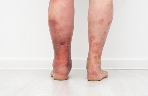 Zamknij się zdjęcie nóg z limfostazą od tyłu