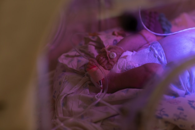 Zamyka up nowonarodzonego dziecka nogi w inkubatorze