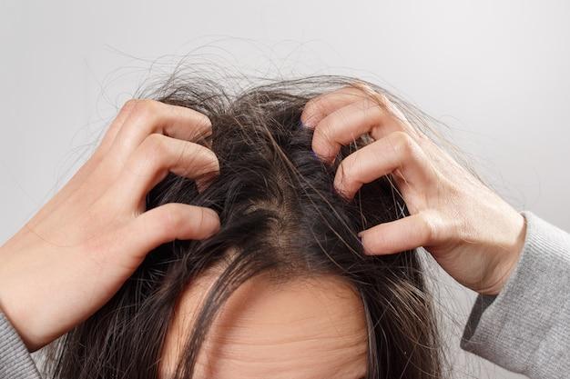 Zamyka w górę kobiet ręk na swędzącym skórze głowy