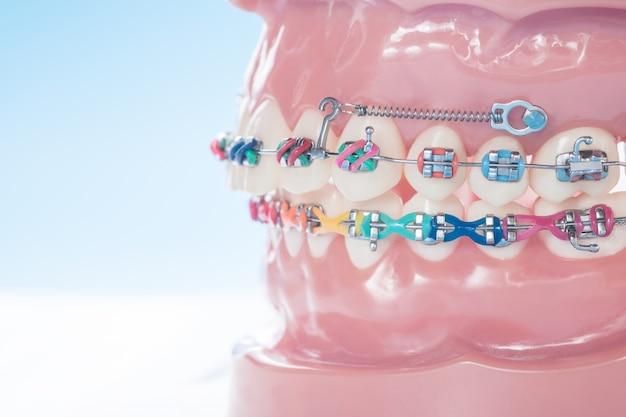 Zamyka w górę ortodontycznego modela na błękitnym tle