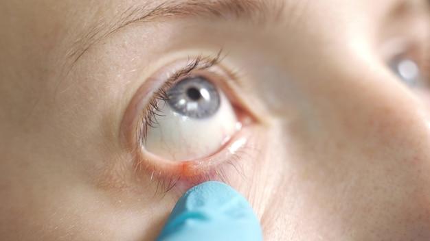 Zapalenie powiek oczu i rzęs z bliska, zbliżenie gruczołów meiboma, choroba hordeolum oka, choroba ludzkiego oka ekstremalne zbliżenie