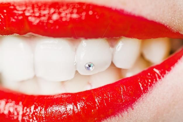 Zapiekanie zębów