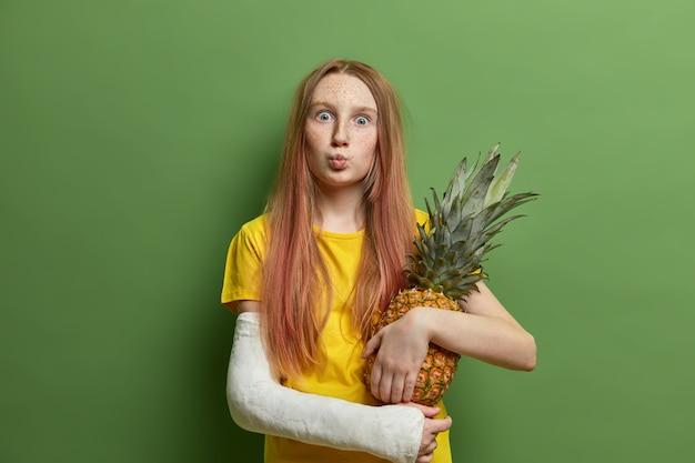 Zaskoczona piegowata dziewczyna z zaokrąglonymi ustami, trzyma pysznego soczystego ananasa, nosi odlany na złamanej ręce, ubrana w żółtą koszulkę, pozuje przy zielonej ścianie, potrzebuje opieki medycznej, trzyma rękę w bandażach
