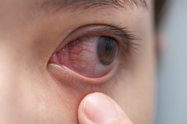 Zbliżenie czerwone oczy kobiety