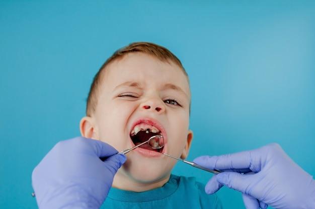 Zbliżenie dłoni dentysty z asystentem w niebieskich rękawiczkach leczy zęby dziecku, twarz pacjenta jest zamknięta