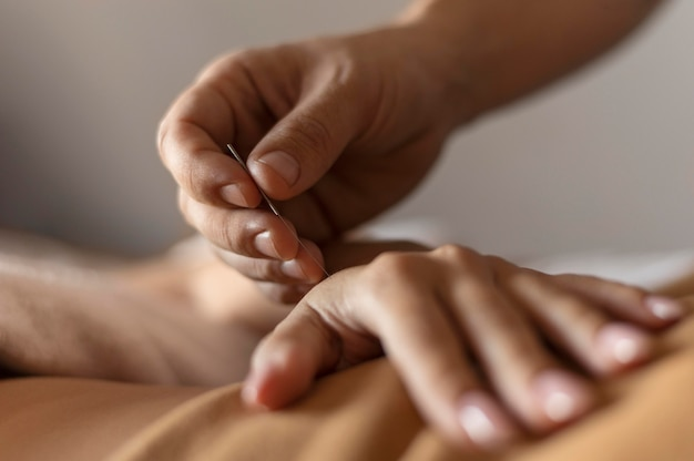 Zbliżenie dłoni trzymającej igłę do akupunktury