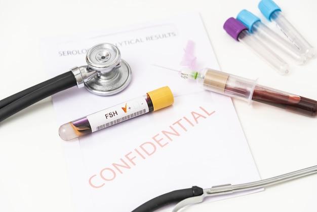 Zbliżenie dodatniej próbki krwi z fsh