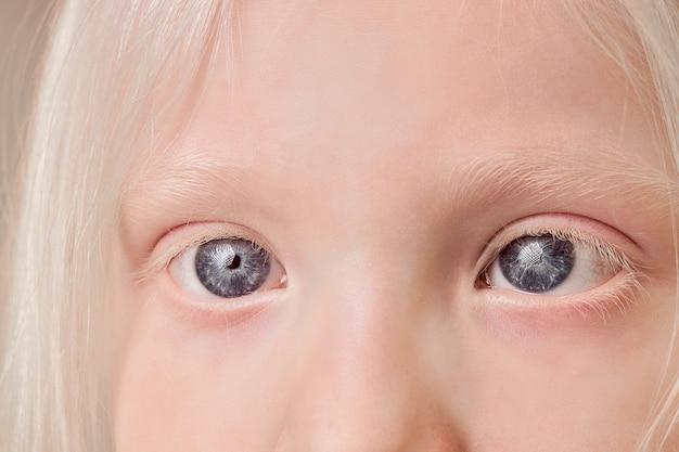 Zbliżenie dziecka albinosa z niezwykłym kolorem oczu, brwi i rzęs