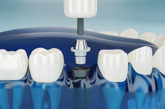 Zbliżenie element implantów dentystycznych przezroczysty. renderowanie 3d.