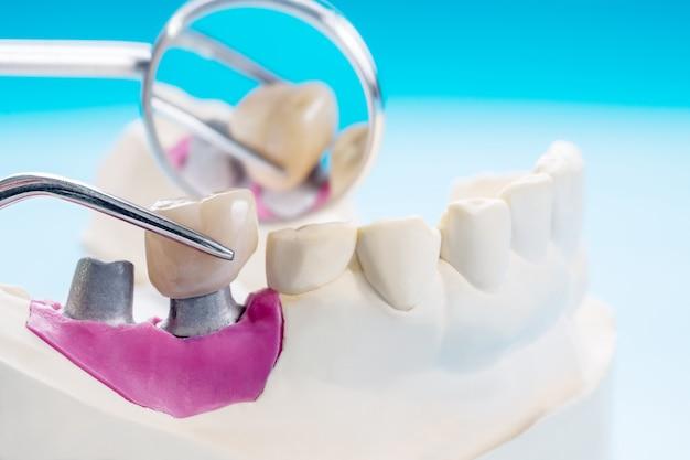 Zbliżenie / implant protetyka lub proteza / korona zęba i sprzęt do implantacji korony i mostu oraz ekspresowa odbudowa modelu.