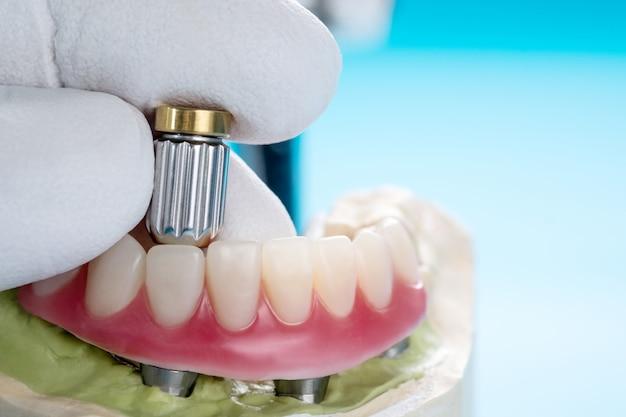 Zbliżenie / implanty dentystyczne wspierały nadciśnienie na niebieskim tle / przykręcono śrubą / uzupełnienia implantu.