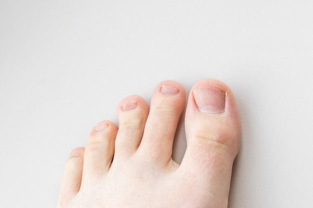 Zbliżenie kobiecych nóg, palców i paznokci bez pedicure