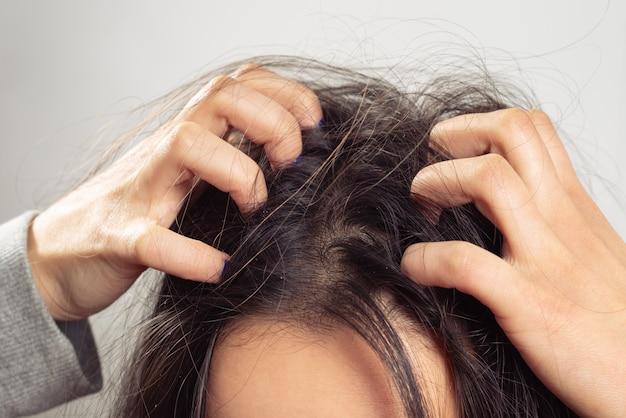 Zbliżenie kobiety ręki swędząca skóra głowy, włosianej opieki pojęcie