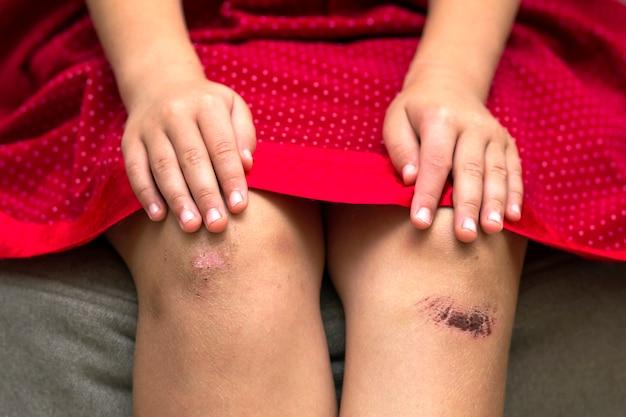 Zbliżenie: mała dziewczynka trzymając jej posiniaczone rannych uszkodzone kolano rękami