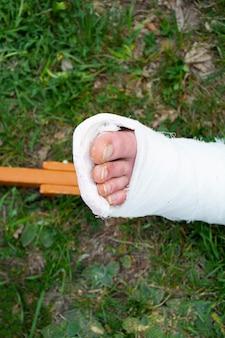 Zbliżenie mężczyzny ze złamaną nogą i kulami