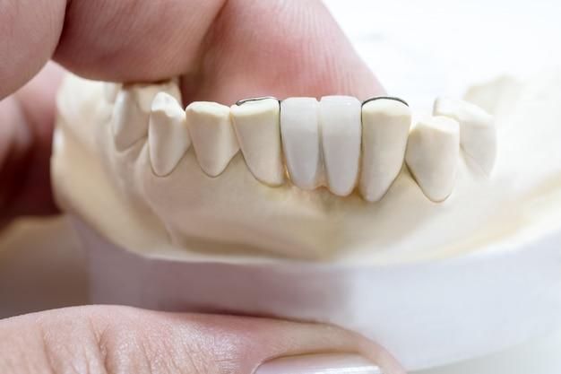 Zbliżenie / most dentystyczny maryland / wyposażenie korony i mostu oraz ekspresowe przywrócenie modelu.