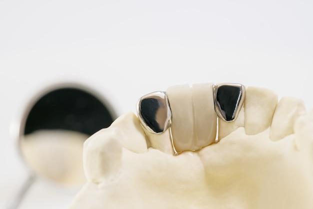 Zbliżenie / most dentystyczny maryland / wyposażenie korony i mostu oraz model ekspresowej naprawy dylematu.