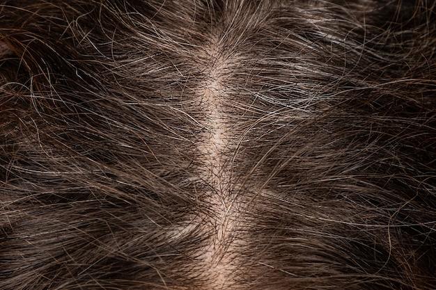 Zbliżenie na korzenie głowy kobiety, na których zaczynają pojawiać się siwe włosy