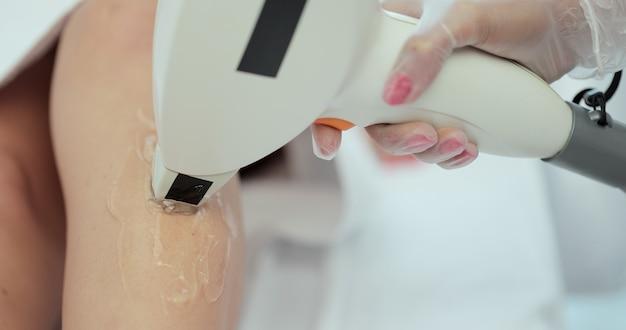 Zbliżenie na laserową depilację nóg. procedura depilacji. depilacja laserowa i kosmetologia.
