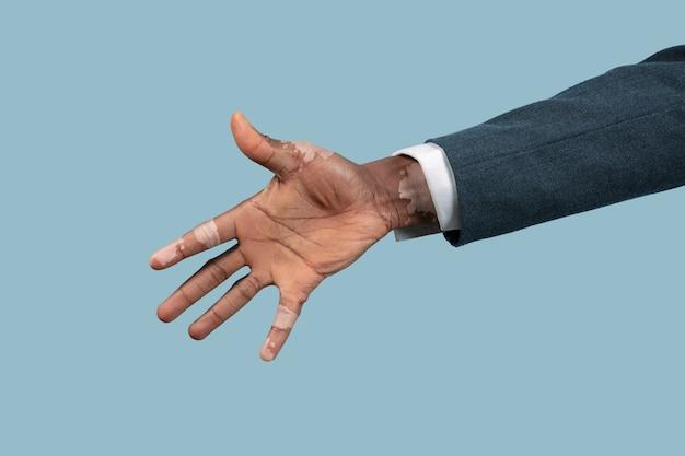 Zbliżenie na męskie dłonie z pigmentami bielactwa na białym tle na niebieskim tle.