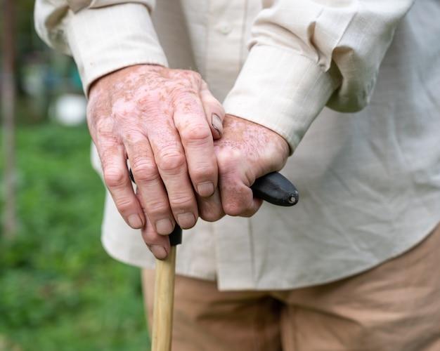 Zbliżenie na męskie dłonie z pigmentami bielactwa na zewnątrz