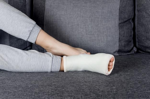 Zbliżenie na nogę z bandażem gipsowym na kostce