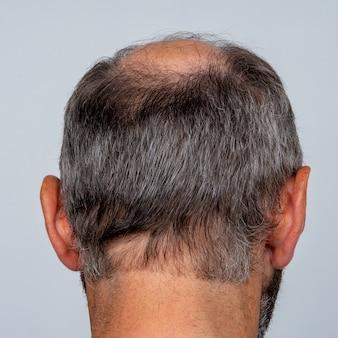 Zbliżenie na pół łysą głowę mężczyzny, koncepcja przeszczepu włosów na wypadanie włosów