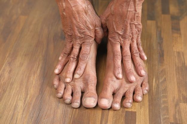 Zbliżenie na stopy starszych kobiet i masaż dłoni w miejscu urazu