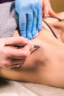 Zbliżenie na usuwanie włosów pod pachami za pomocą pincety. depilacja kobiet. sklep kosmetyczny i kosmetyczny