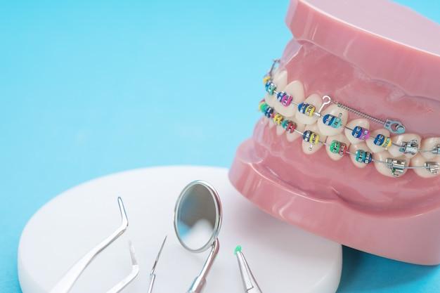Zbliżenie narzędzi dentystycznych i modelu ortodontycznego - demonstracyjny model zębów z różnymi zamkami ortodontycznymi