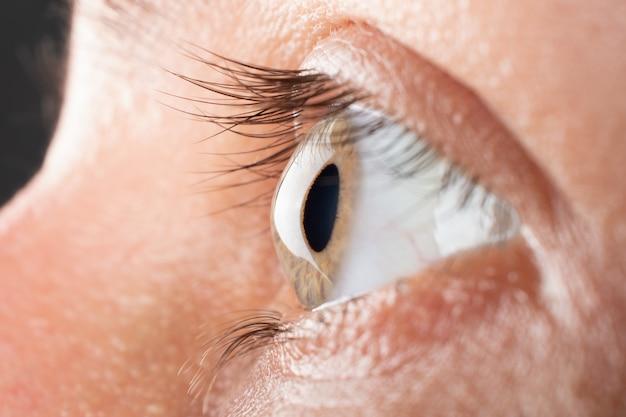 Zbliżenie oka kobiety z 3 stopniem stożka rogówki, dystrofią rogówki.
