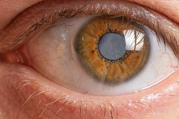 Zbliżenie oka ludzkiego - zmętnienie soczewki zaćmy.