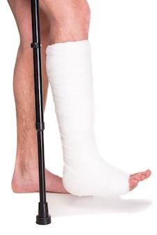 Zbliżenie pacjenta ze złamaną nogą w gipsie i bandażu.