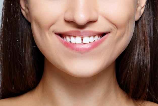 Zbliżenie piękna brunetka kobieta z ładnymi oczami i przerwą między zębami